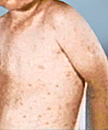 Measles Concern!